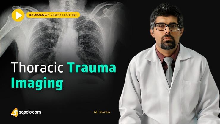 Thoracic Trauma Imaging