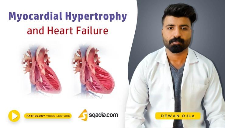 Myocardial Hypertrophy and Heart Failure