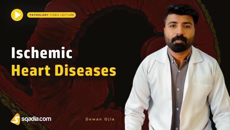 Ischemic Heart Diseases