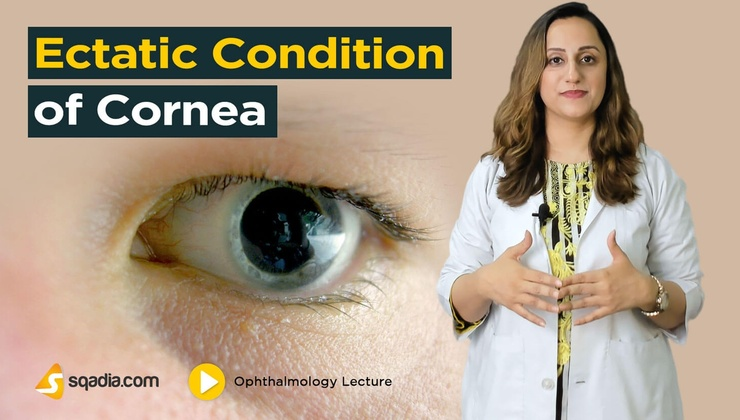 Ectatic Condition of Cornea