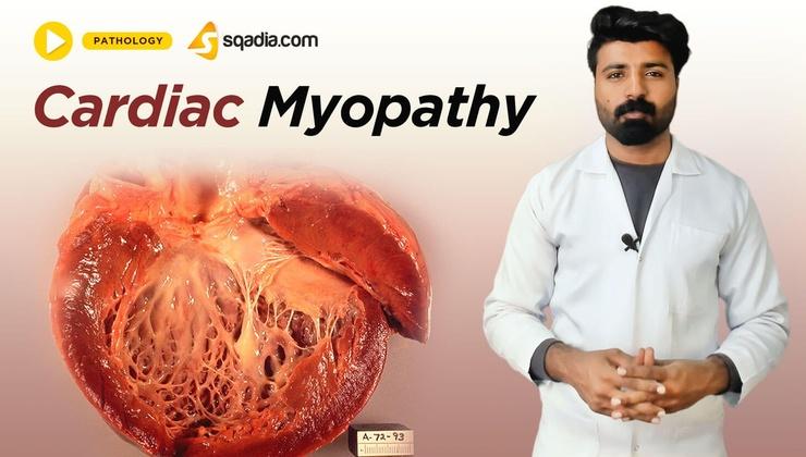 Cardiac Myopathy