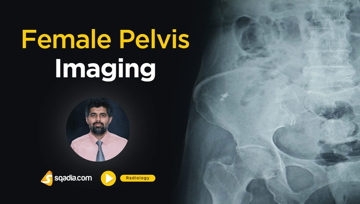 Female Pelvis Imaging