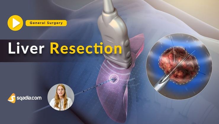 Liver Resection