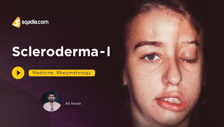 Scleroderma - I