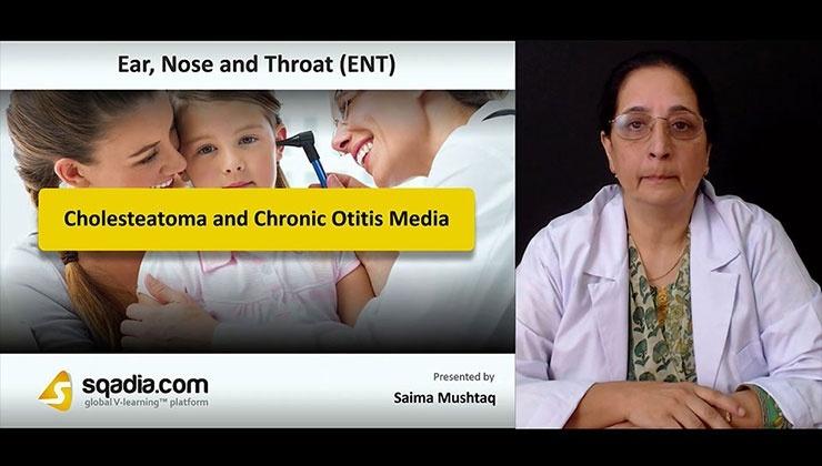 Cholesteatoma and Chronic Otitis Media