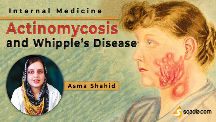 Actinomycosis and Whipple's Disease