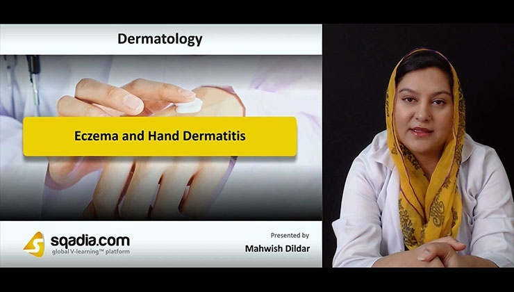 Eczema and Hand Dermatitis