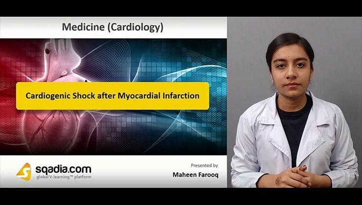 Cardiogenic Shock after Myocardial Infarction