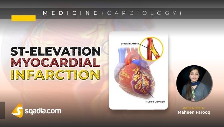 ST-Elevation Myocardial Infarction