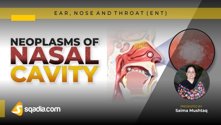 Neoplasms of Nasal Cavity