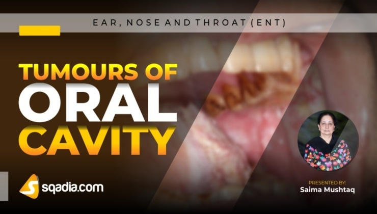 Tumours of Oral Cavity