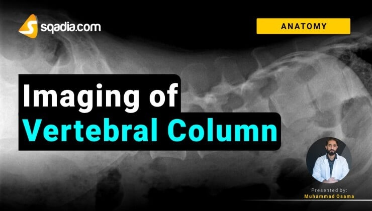 Imaging of Vertebral Column