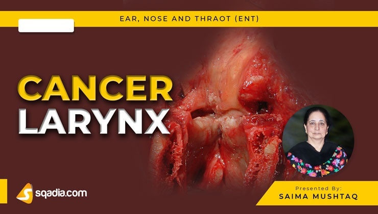 Cancer Larynx