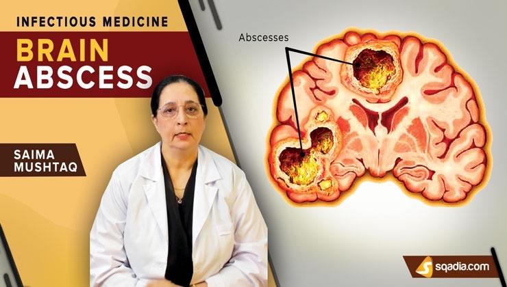 Brain Abscess