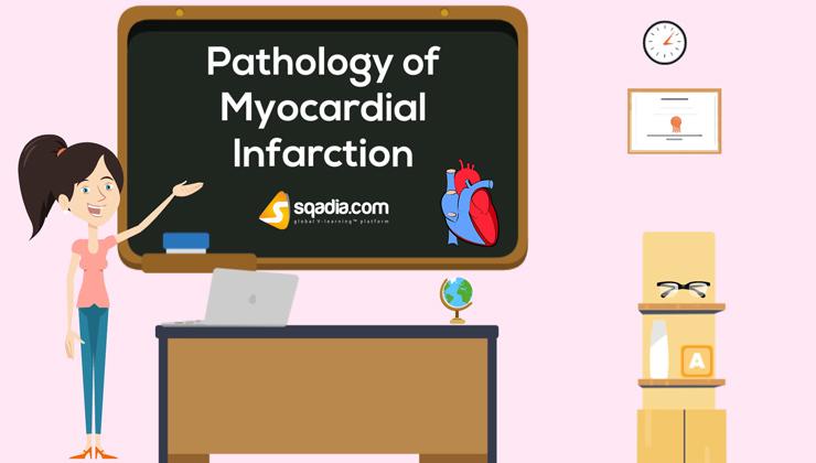 Pathology of Myocardial Infarction