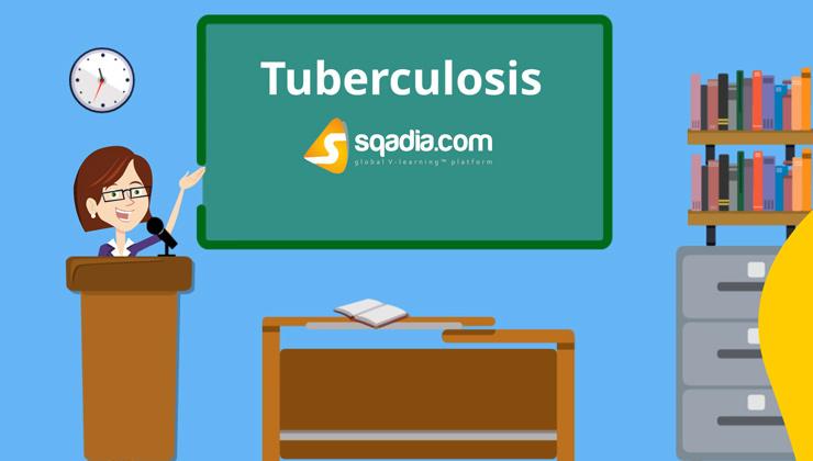 Tuberculosis (SQT)