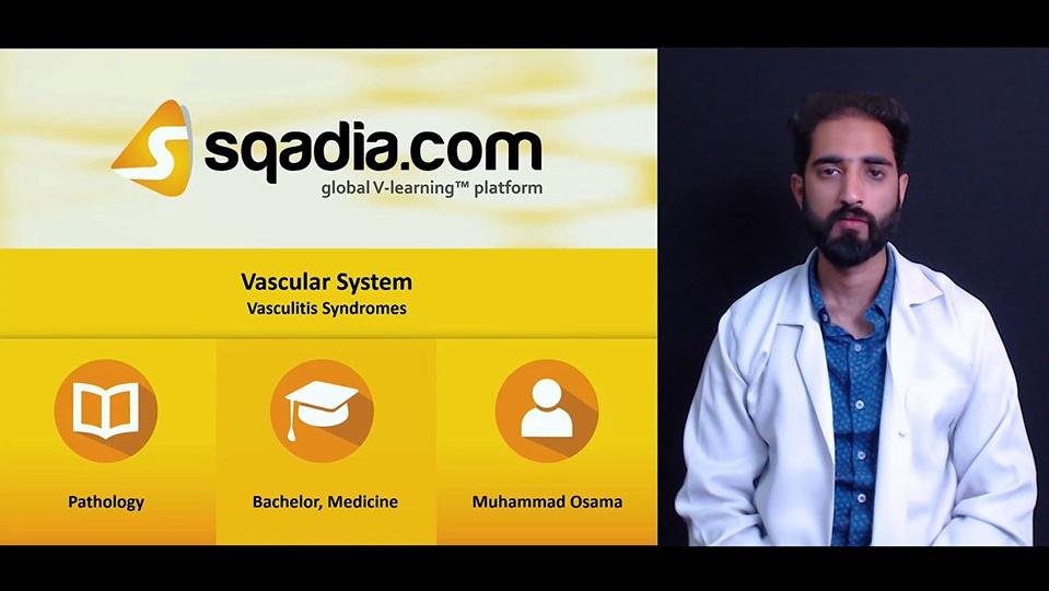 Ugpd46jqqliri1tarqux 180330 s4 osama muhammad vasculitis syndromes
