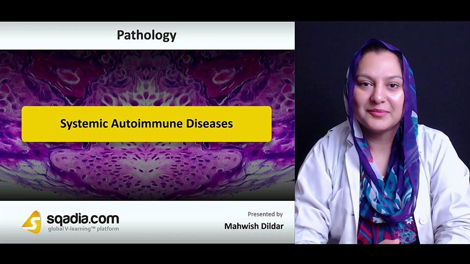 8ibcepzfrnwrkbfy3jfl 180712 s0 dildar mahwish systemic autoimmune diseases intro