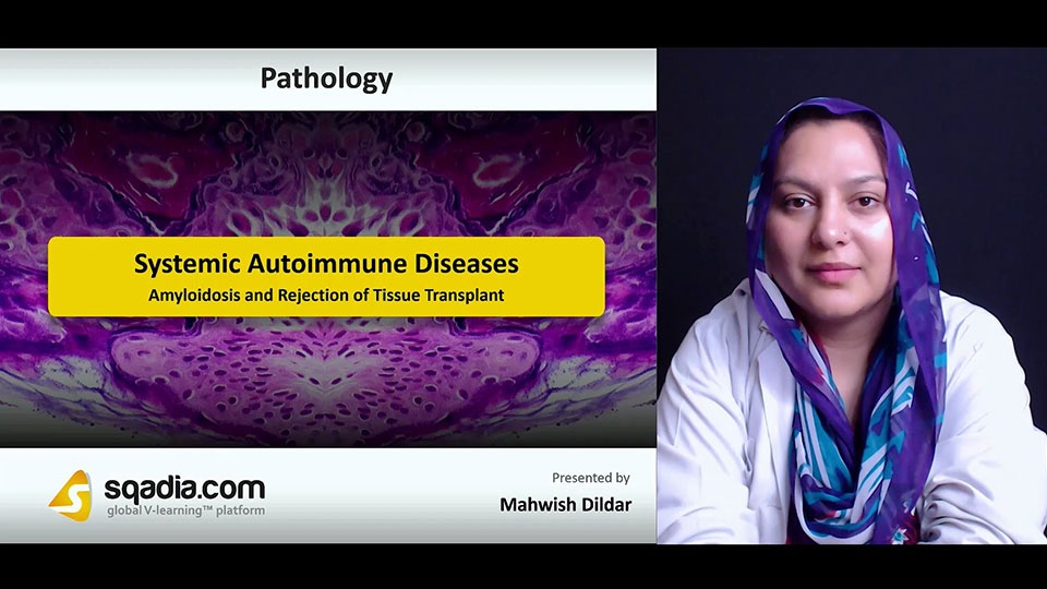 Qtminxkrrbs7snt7jqql 180712 s5 dildar mahwish amyloidosis and rejection of tissue transplant