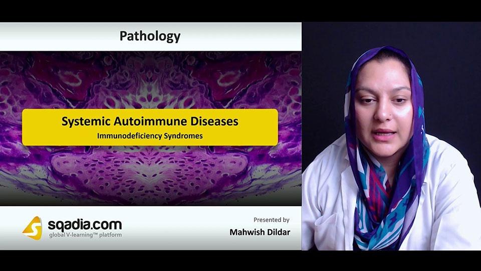 Nii4xotftacufldqwzzg 180712 s4 dildar mahwish immunodeficiency syndromes