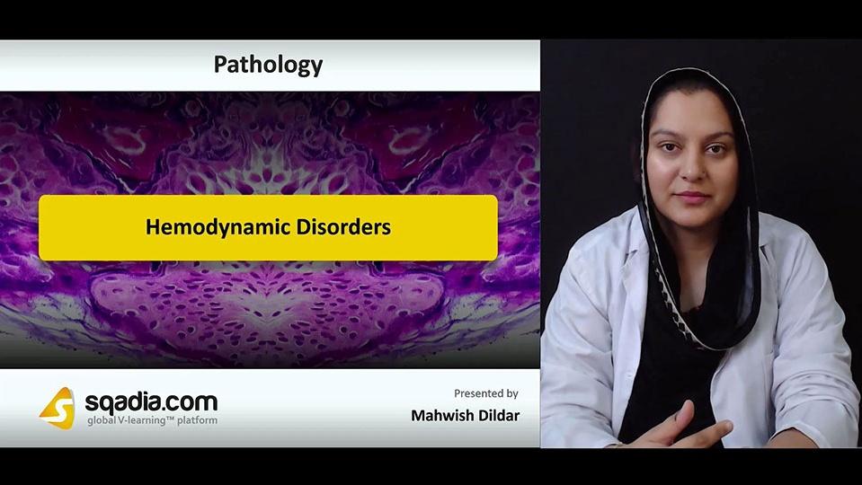 U7ycl0xdsu6z9ursearc 180727 s0 dildar mahwish hemodynamic disorders intro