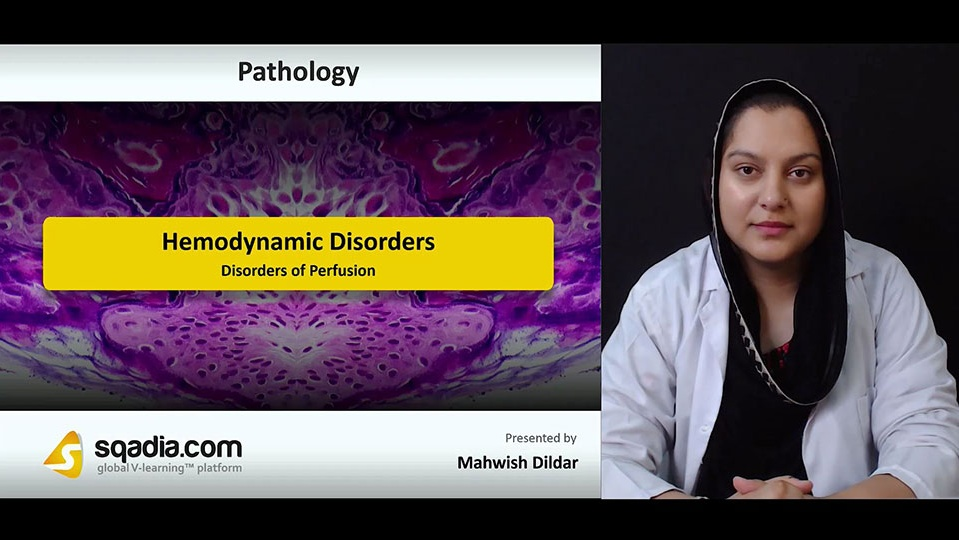 Ol0qbqhqz2kwclwxutv5 180727 s2 dildar mahwish disorders of perfusion