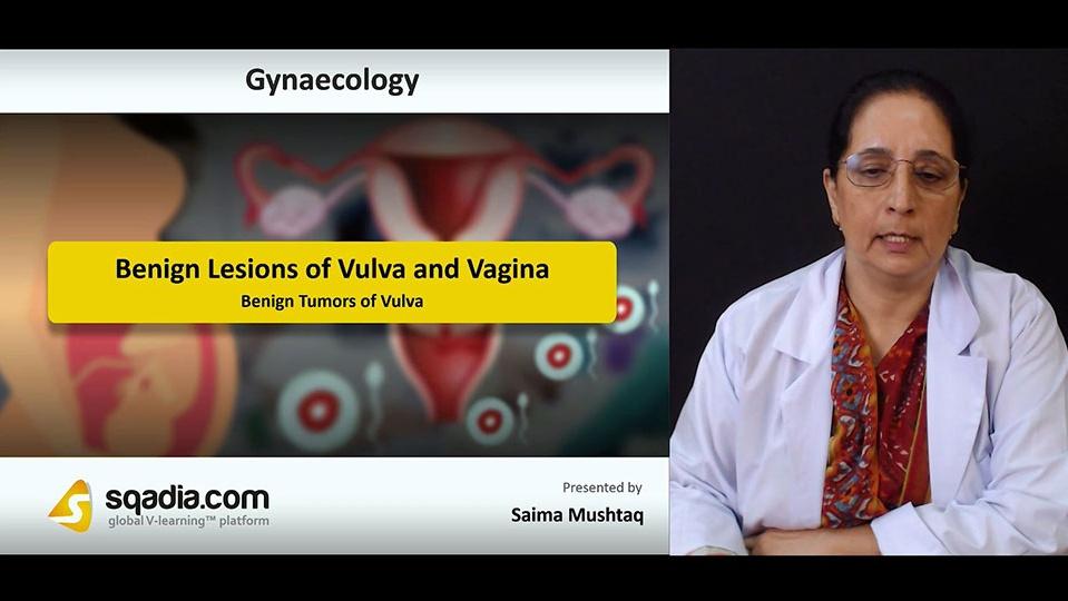 Ytpbkuvlqrypyoajl6rv 180730 s4 mushtaq saima benign tumors of vulva