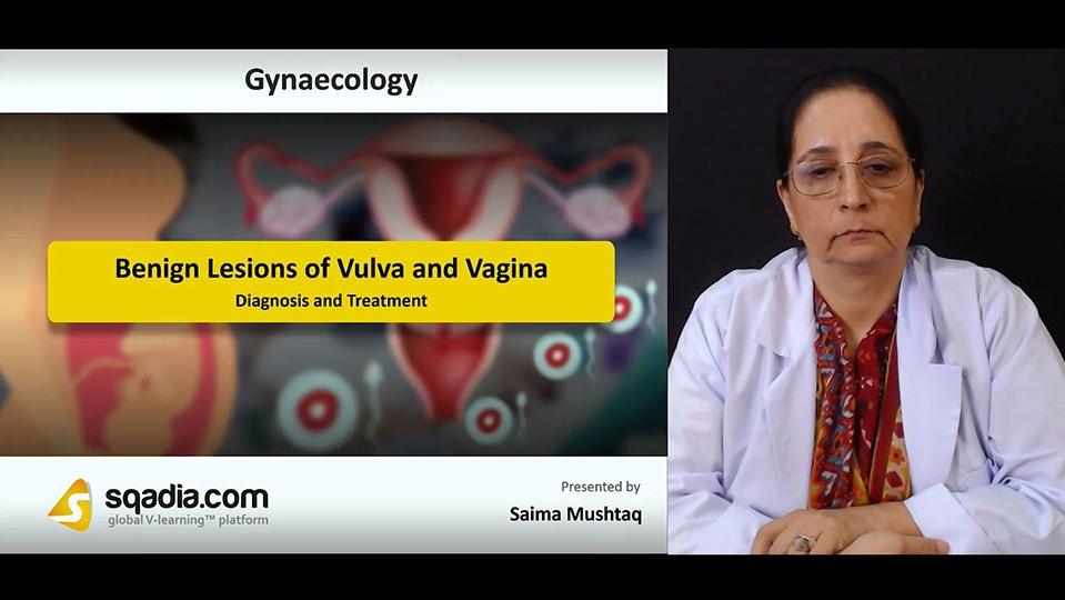 Vjya69vnsisntsockjbh 180730 s2 mushtaq saima diagnosis and treatment