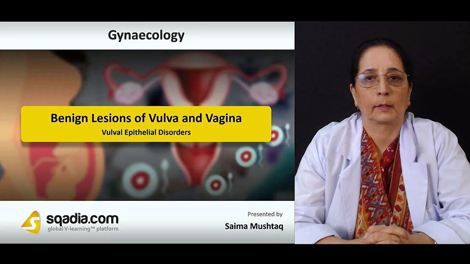 Qocxsp0fsued9dsz0xxa 180730 s1 mushtaq saima vulval epithelial disorders