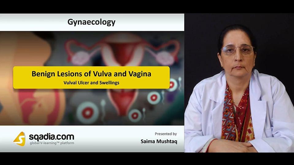 Xjvlglsjslyl5qzxuwgx 180730 s3 mushtaq saima vulval ulcer and swellings