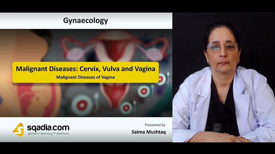 G88vmbhqqbio81ghmcqj 180806 s3 mushtaq saima malignant diseases of vagina