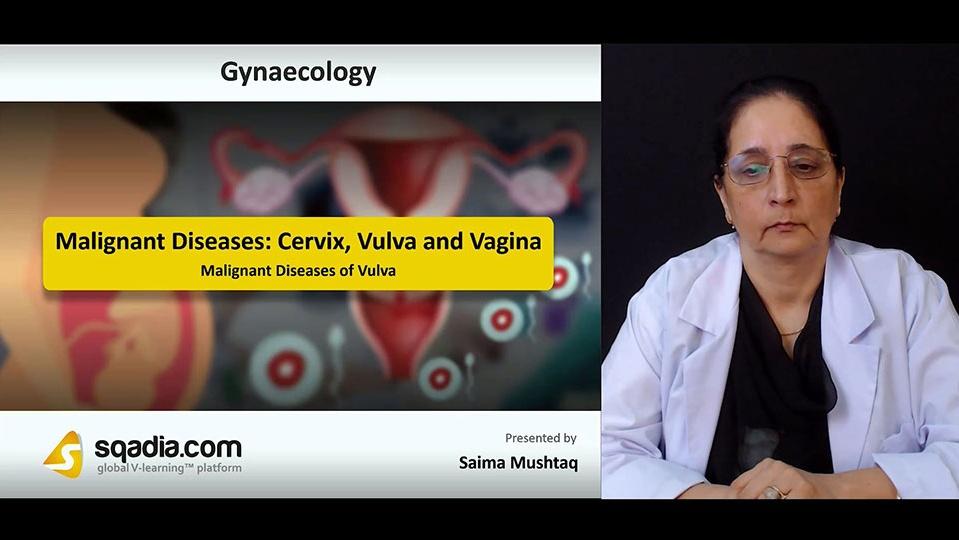 Fnrybl7iqncszegsy5ze 180806 s4 mushtaq saima malignant diseases of vulva