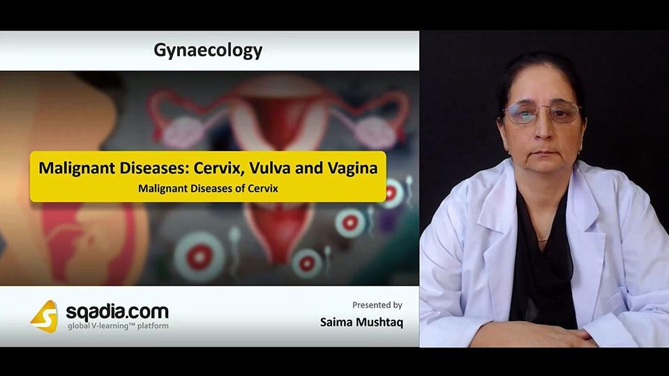 6roxyi8xrka7ehizpw1g 180806 s1 mushtaq saima malignant diseases of cervix