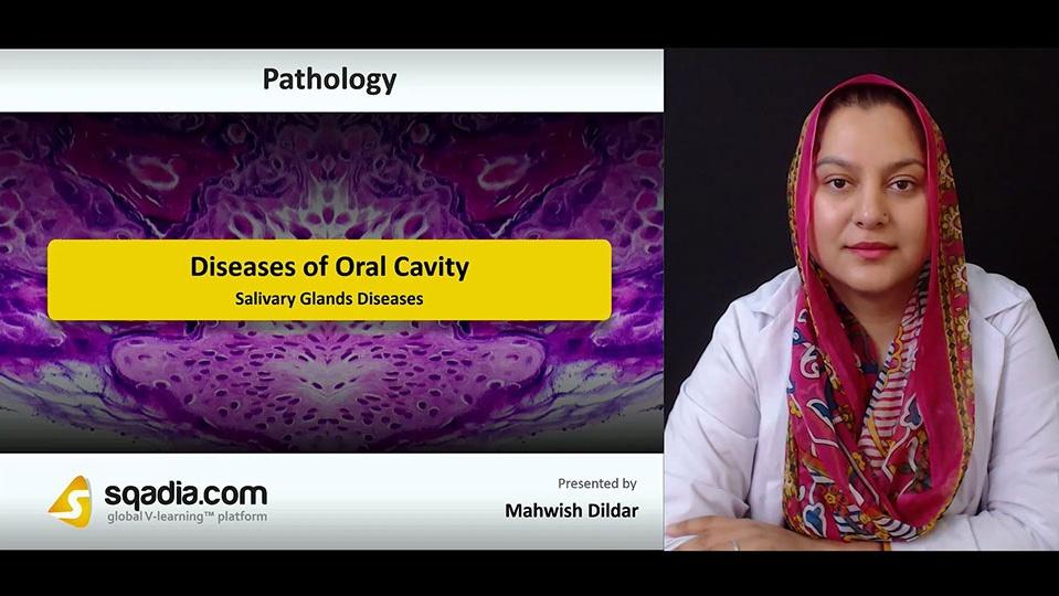 Kck4gil5rfctxdfnsdfd 180808 s4 dildar mahwish salivary glands diseases