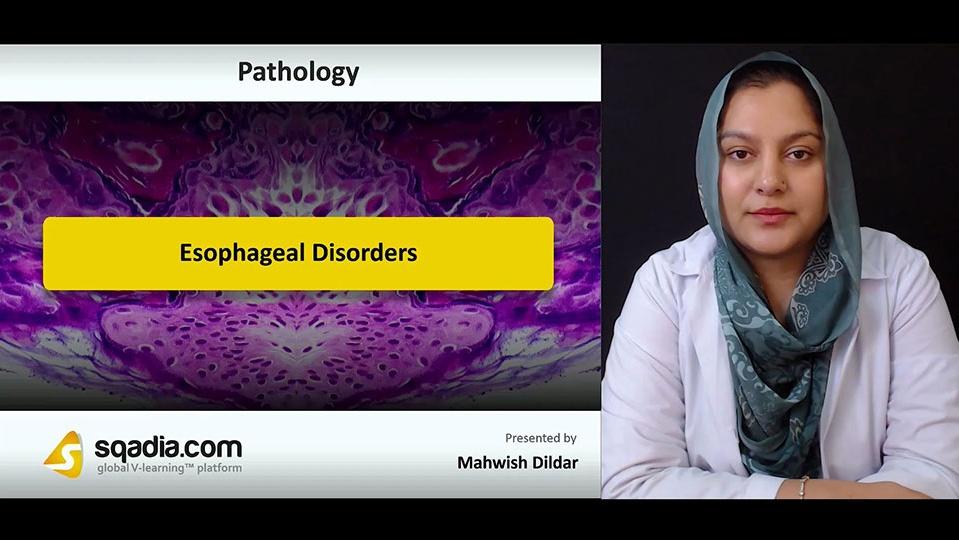 1ebhlnhxrvqwemsmdc7r 180808 s0 dildar mahwish esophageal disorders intro