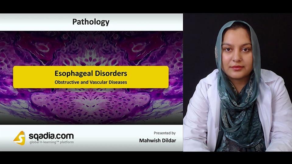 Mylvg48crxix14eyyocj 180808 s1 dildar mahwish obstructive and vascular diseases
