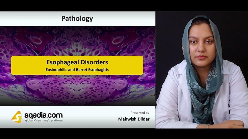 Owhh0owqogmqlqhqk1o8 180808 s4 dildar mahwish eosinophilic and barret esophagitis