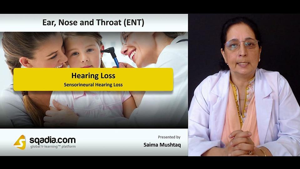 21kcpcxktsa0vjxudarc 180813 s2 mushtaq saima sensorineural hearing loss