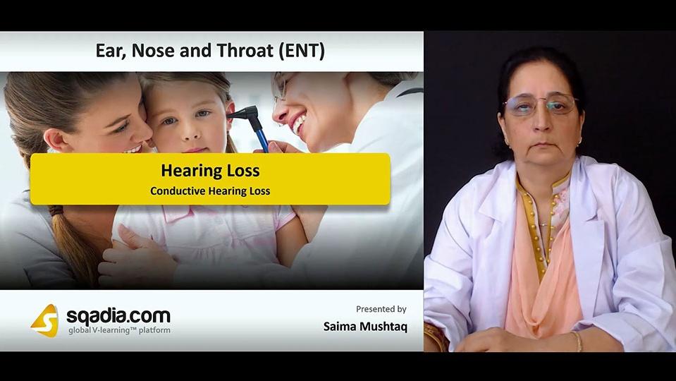 Jhrtzzdxqjkbpeftjj2f 180813 s1 mushtaq saima conductive hearing loss