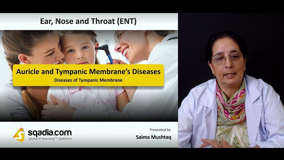 Bizbzyriqdcfrxzcgdhw 180827 s5 mushtaq saima diseases of tympanic membrane