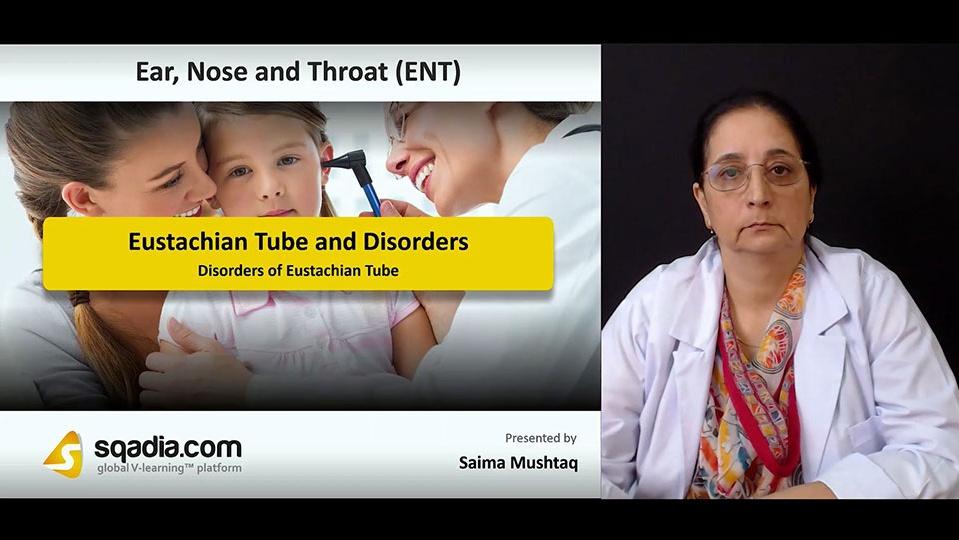 Ei1ohrqss2nsrj9yx0rg 180910 s4 mushtaq saima disorders of eustachian tube