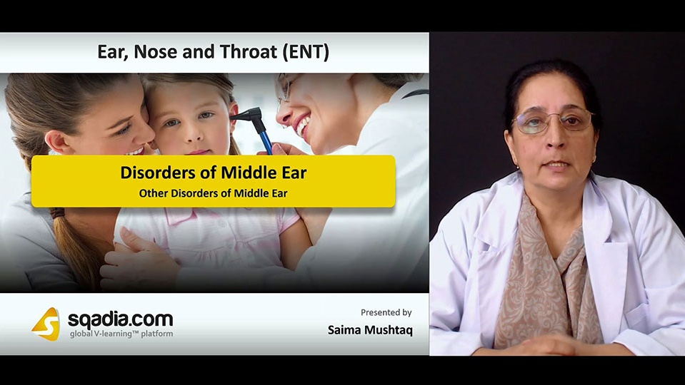 Data 2fimages 2f7wzvwg2hr1iun2fqbyon 180917 s4 mushtaq saima other disorders of middle ear