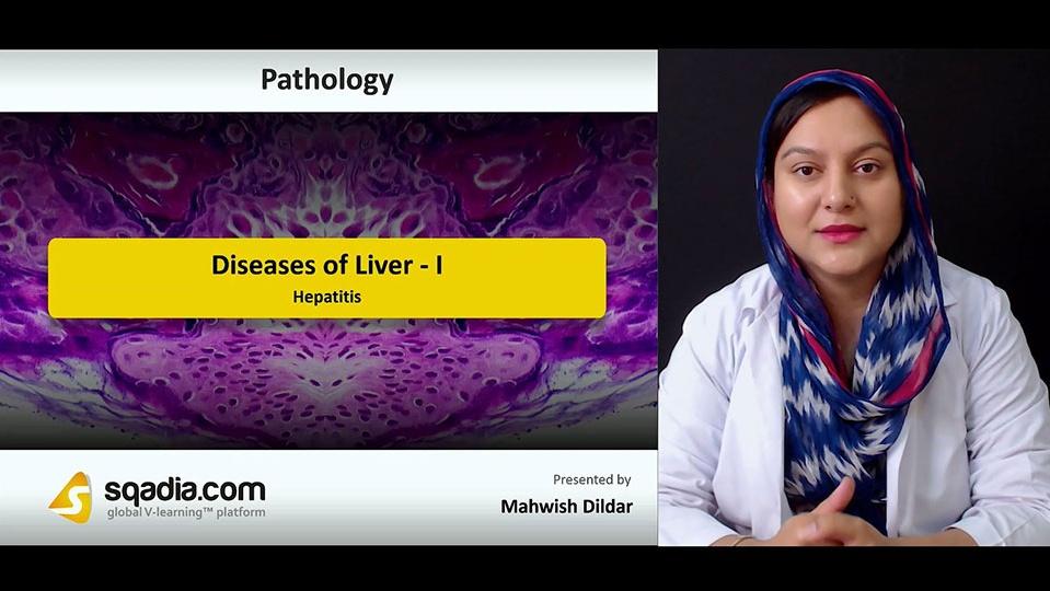 Data 2fimages 2fivhumtssqtgsyds6uxum 180918 s3 dildar mahwish hepatitis