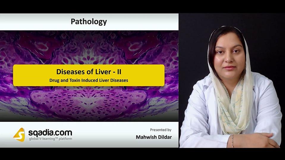 Data 2fimages 2fqcyjigeqq2wj2hmrarva 180918 s1 dildar mehwish drug and toxin induced liver diseases