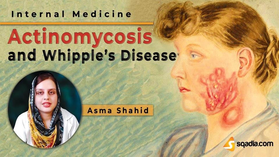 Data 2fimages 2fs0so7jxvsks7oybtgxxk 180929 s0 shahid asma actinomycosis and whipple e2 80 99s disease intro