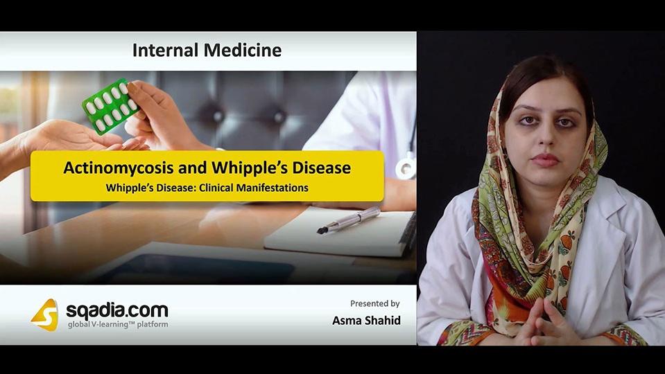 Data 2fimages 2fufbfoswhsf69wpvxcjsu 180929 s4 shahid asma whipple e2 80 99s disease clinical manifestations