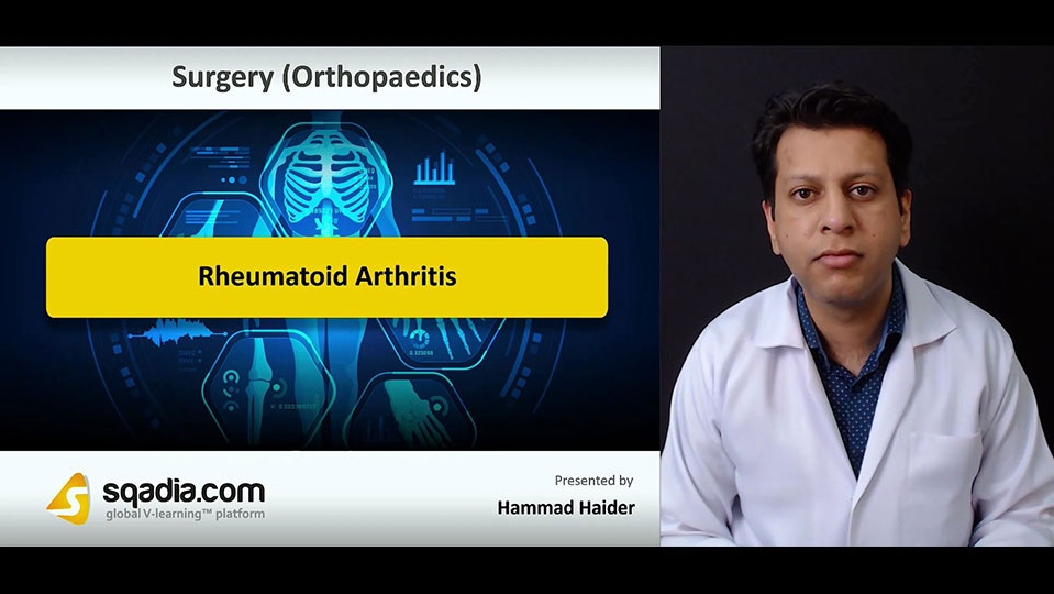 Data 2fimages 2fp17fsc80qw2p7ahgoqc2 181011 s0 haider hammad rheumatoid arthritis intro