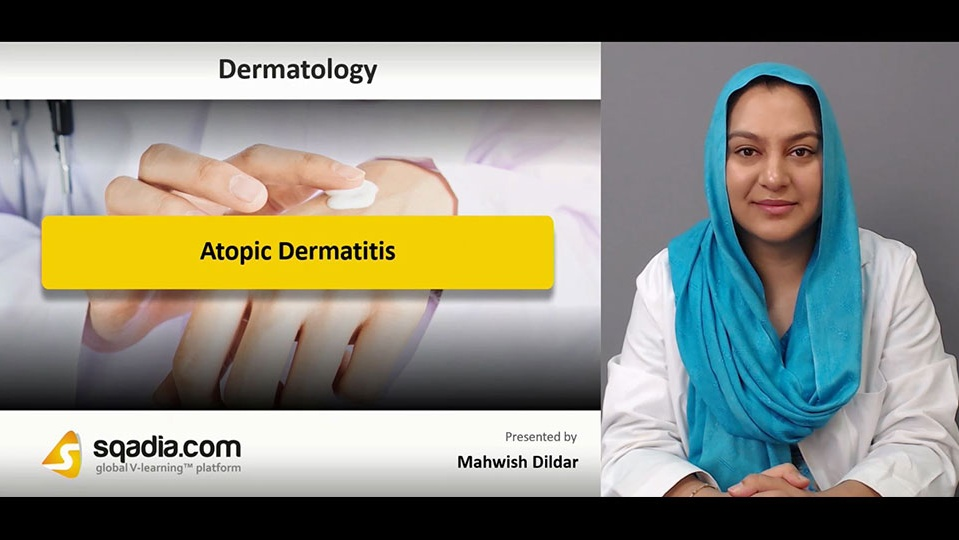 Data 2fimages 2f3ollcfjrrxdf8m857jkf 181205 s0 dildal mahwish atopic dermatitis intro