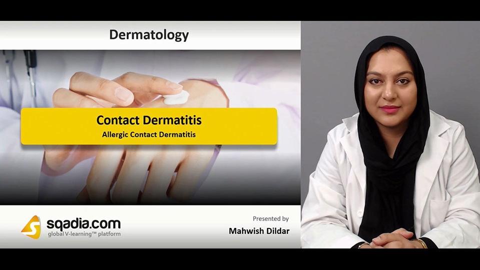Data 2fimages 2fhv7qgnanrisdje2qgcjs 181205 s3 dildar mahwish allergic contact dermatitis