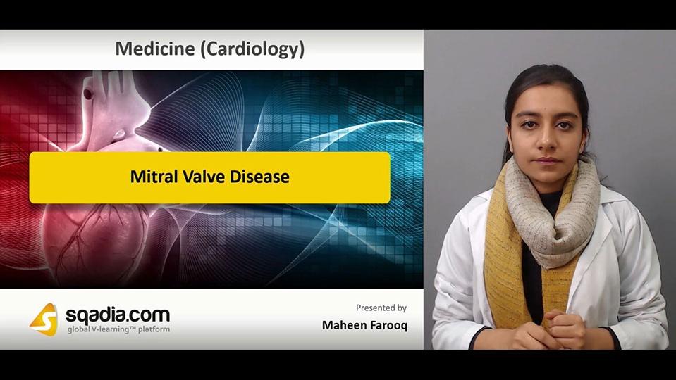 Data 2fimages 2fmoxw8aufs7qzxnkcdcrz 181217 s0 farooq maheen mitral valve disease intro